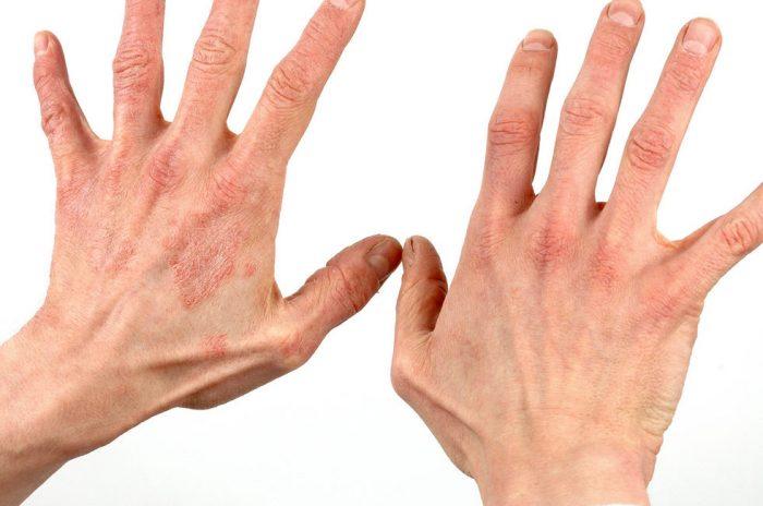 симптомы патологического состояния кожи