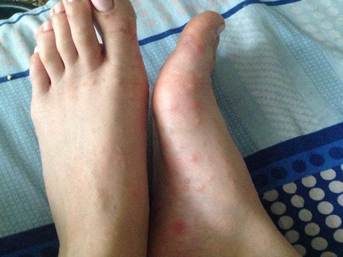 дерматит на стопах