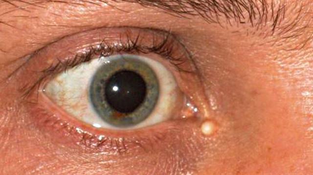 жировик около глаза