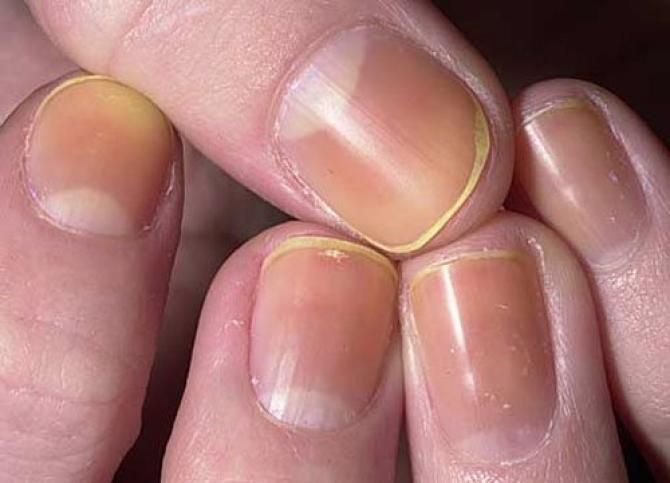 уменьшение блеска ногтевых пластин