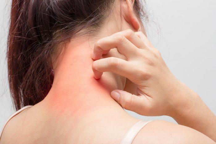 зуд при атопическом дерматите
