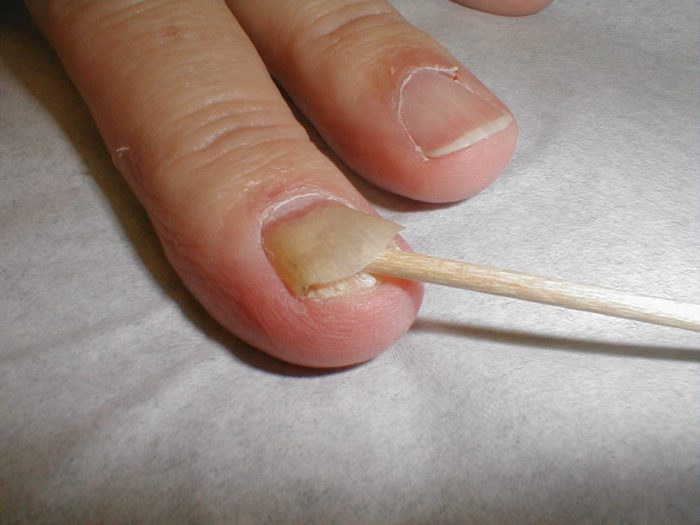 ногтевая пластина отходит от кожи