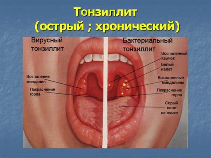 заболевание хронического типа
