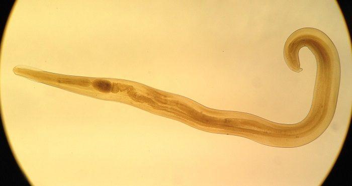 зуд вокруг ануса могут вызывать многие паразиты
