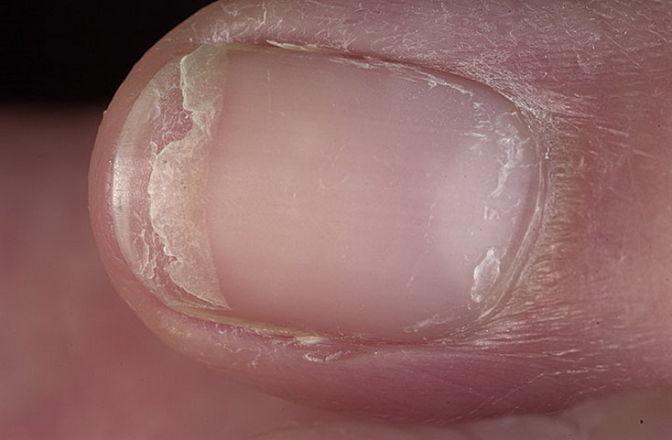 гапалонихия ногтя