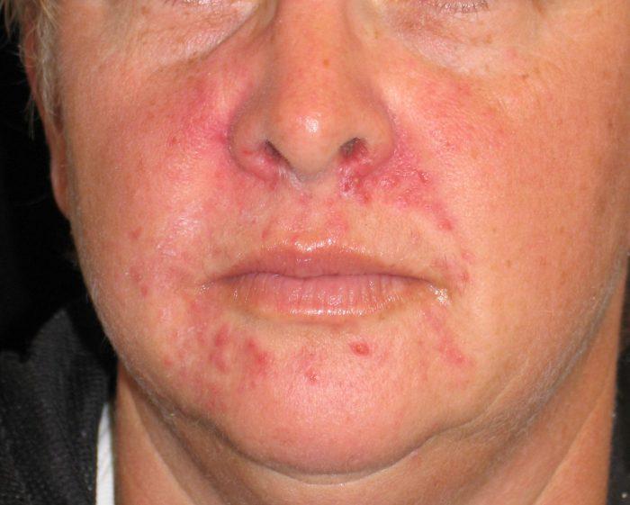 аллергическая разновидность недуга