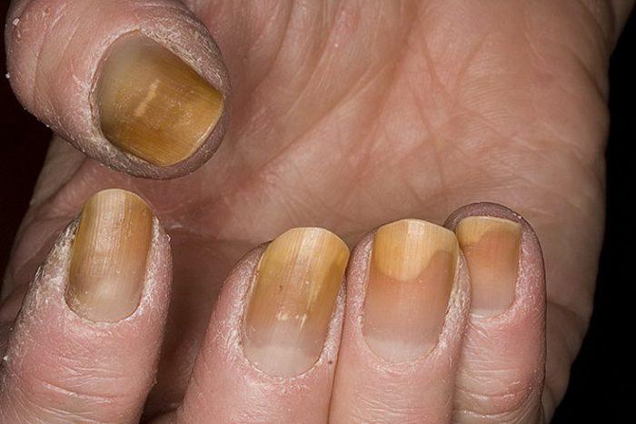 хромонихия ногтей