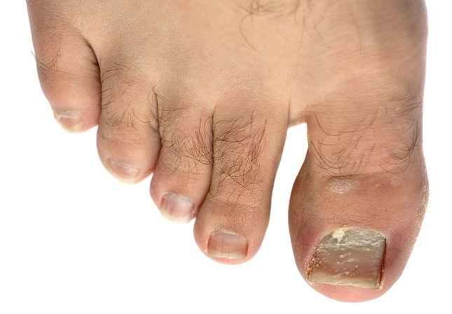 плесневый грибок на ногтях ног