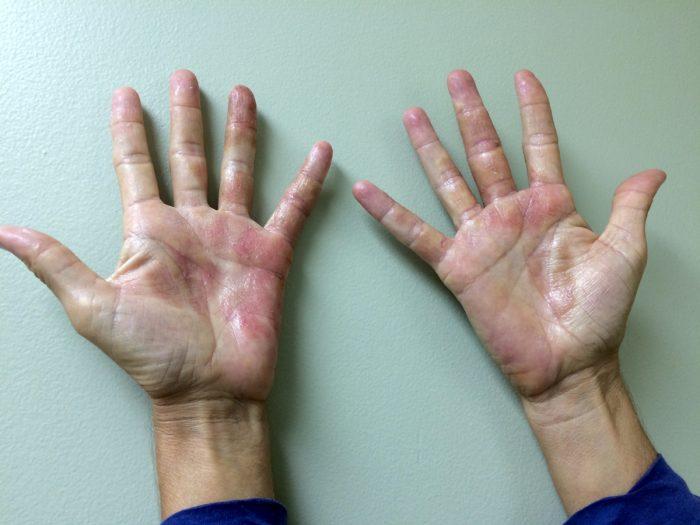 атопическая форма дерматита