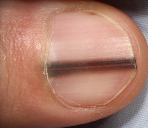продольное расщепление ногтевой пластины.