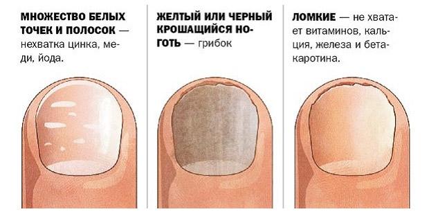 этиология деформирования ногтей