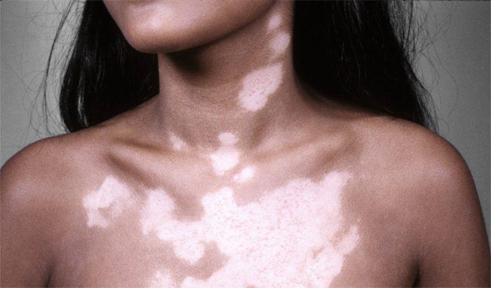 белые пятна на коже человека