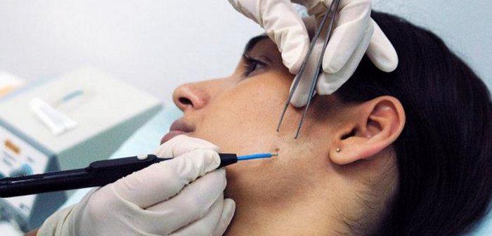 оперативное лечение кожи лица