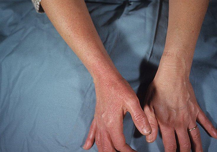 Рожистое воспаление сустав - Все про суставы