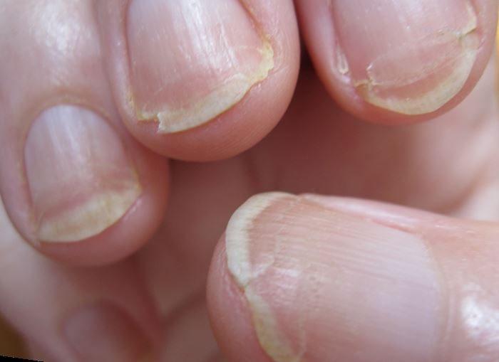 расщепление ногтя