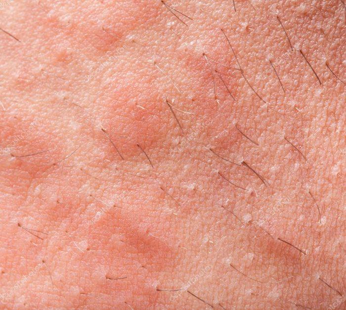 первичные проявления дерматита