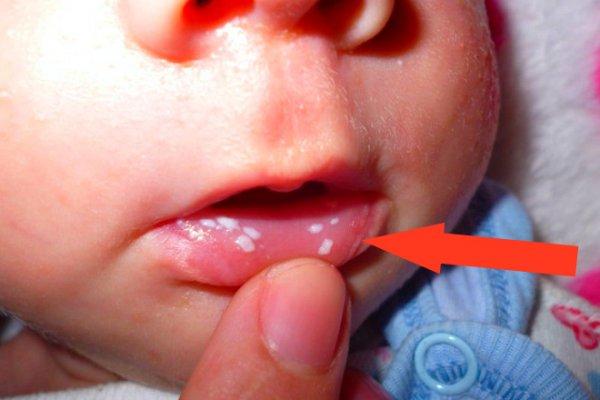 кандидоз губ