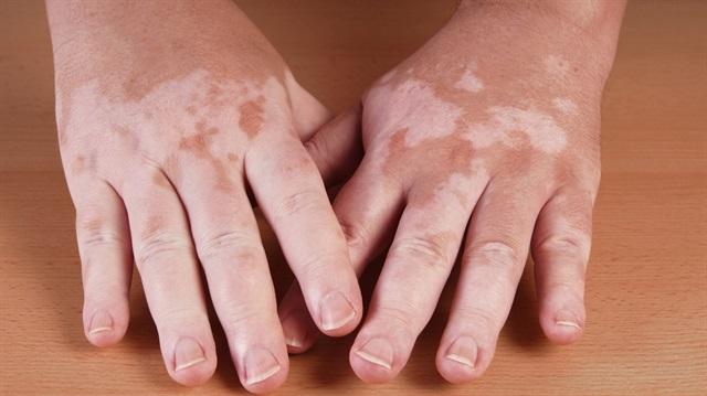 осложнения после дерматита