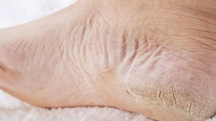 эпидермофития стопы