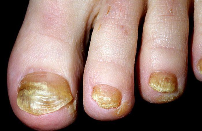 дисхромия изменяет цвет ногтя