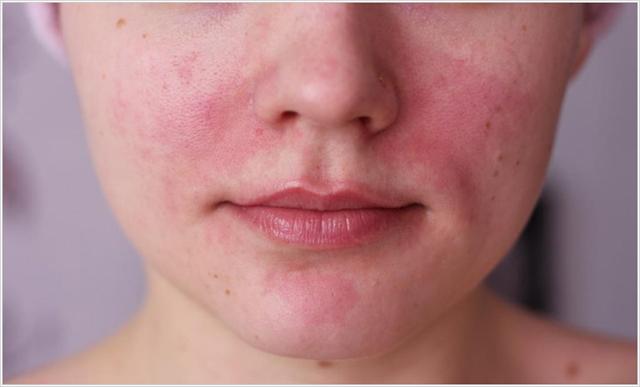 причины сыпи на лице