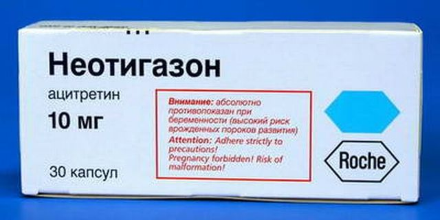 лечение кератодермии