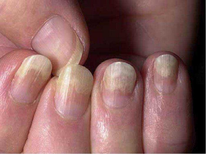 стригущий лишай ногтей