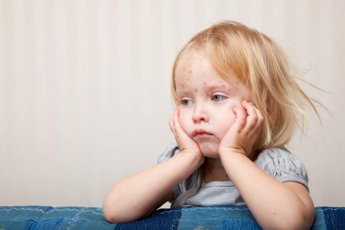 Пятна на коже у ребенка иммунитет thumbnail