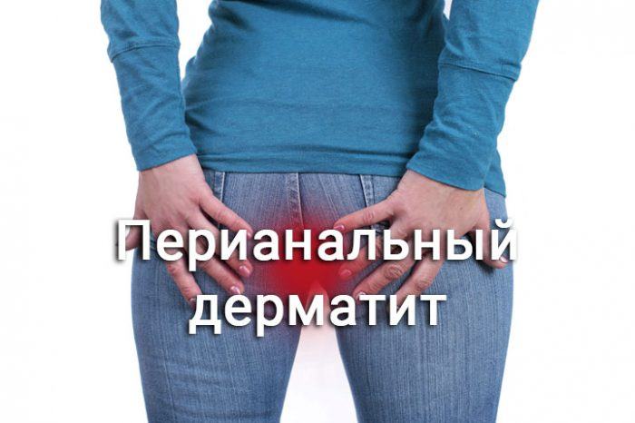 перианальная форма дерматита