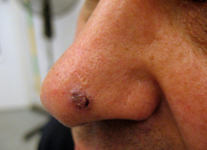 опухоль базалиома