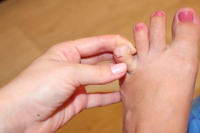 мозоль между пальцами ног