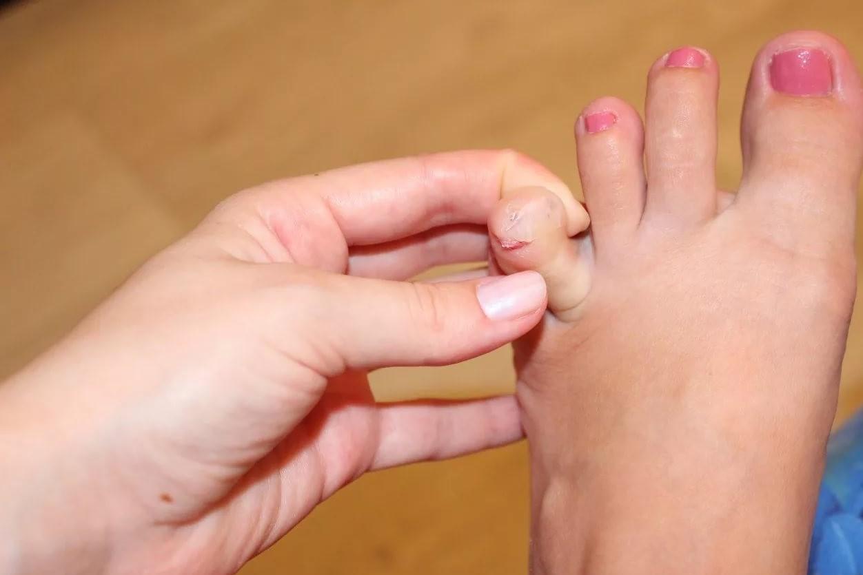 Как избавиться от наростов и мозолей между пальцами ног