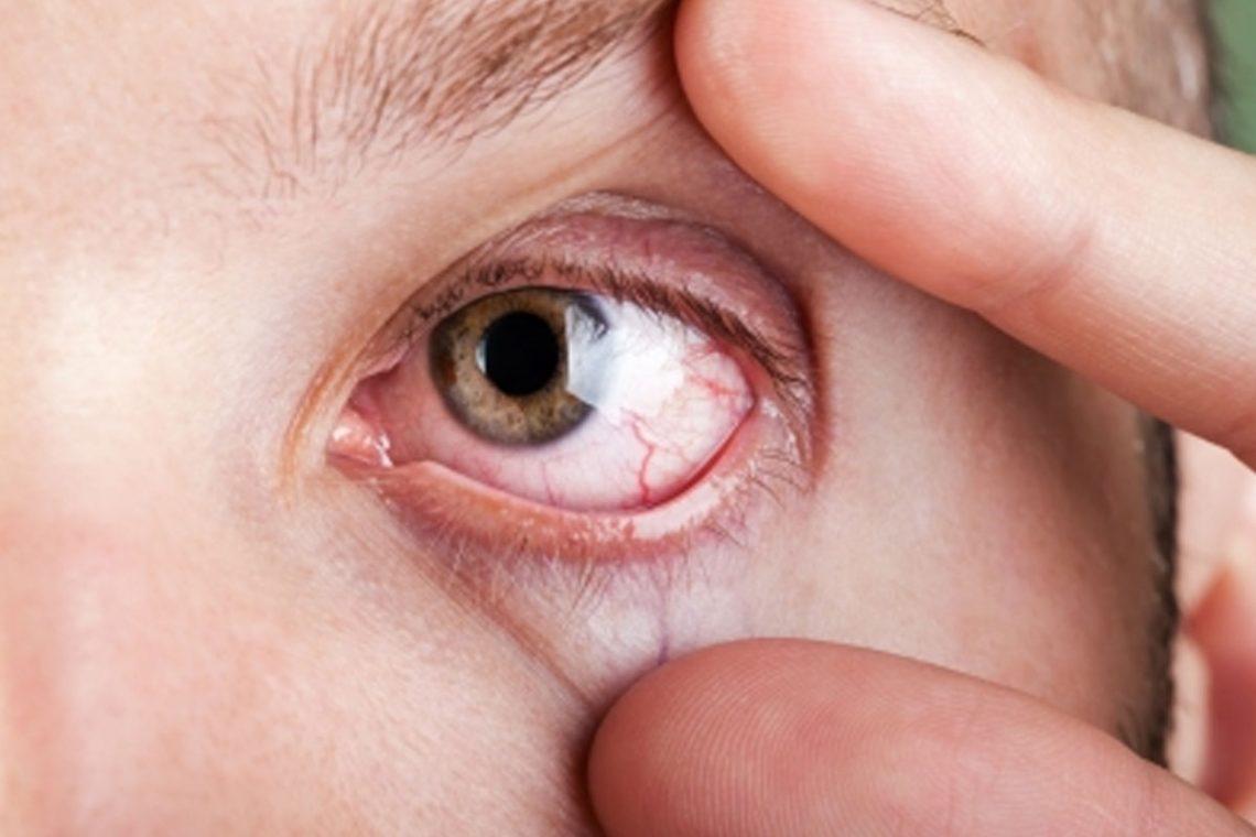 Грибок на коже глаз