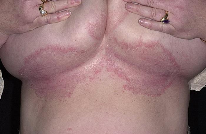 Грибок на молочной железе лечение