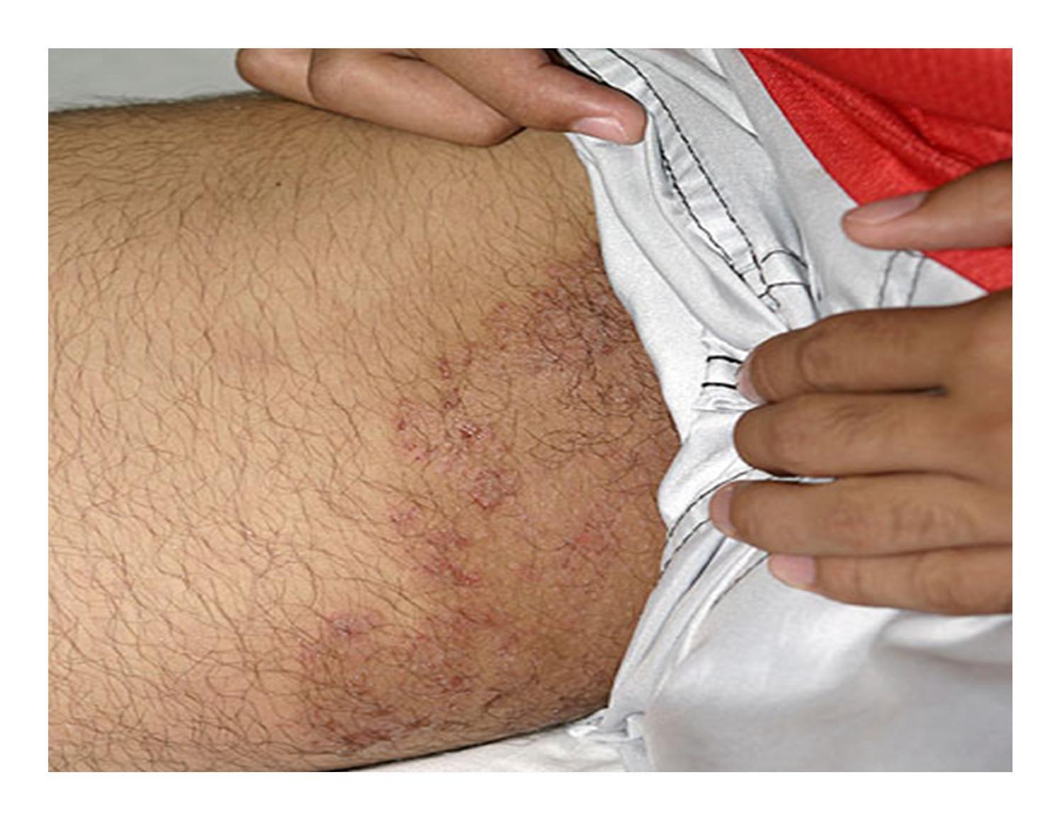 Лечение пахового грибка - симптомы, эффективные методы и средства против поражения кожи
