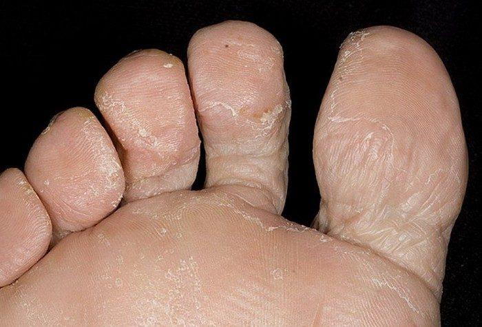 слезает кожа с пальцев ног