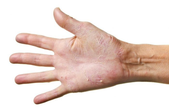 виды грибка на руках