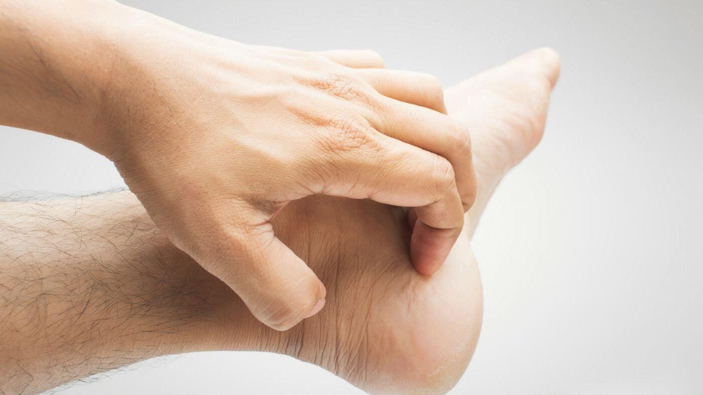 Шелушится кожа стоп как устранить шелушение и смягчить кожу стоп