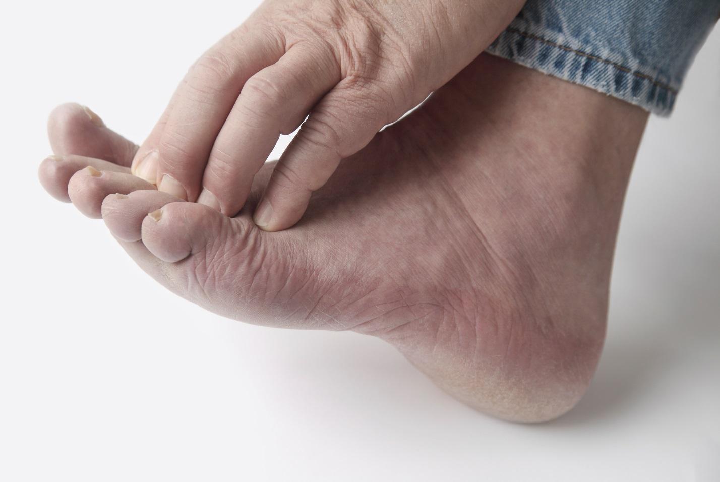 Грибок на ногах - лечение в домашних условиях