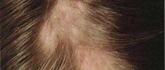 микоз на волосистой части головы