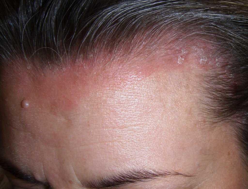 Почему шелушится кожа на голове у взрослого