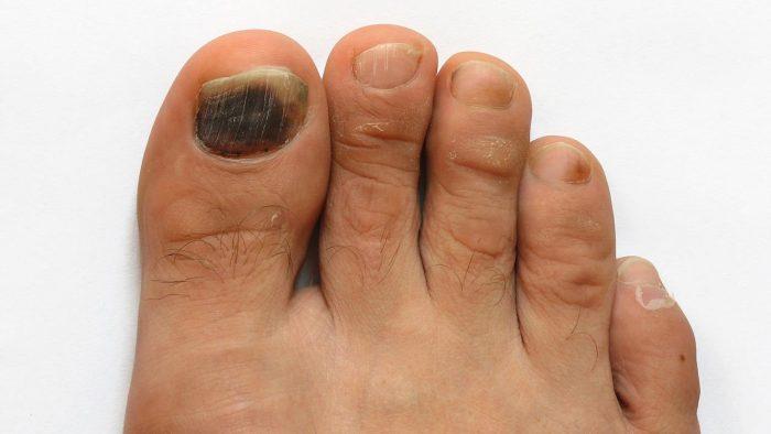 почернение пальца на ноге