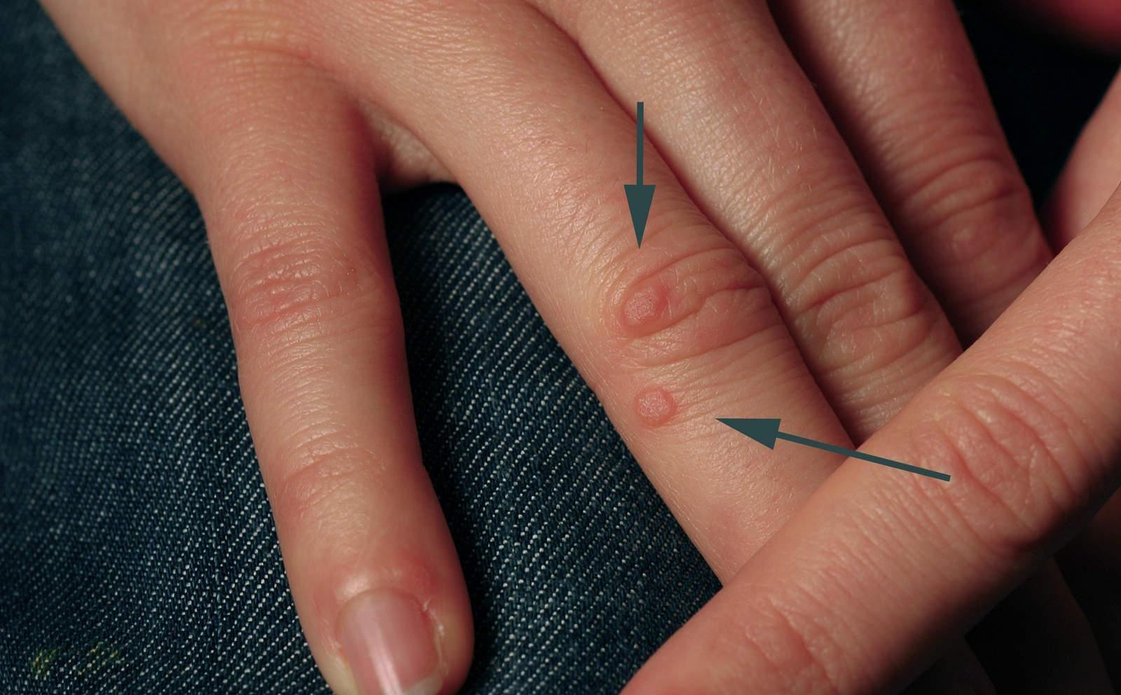 Удаление бородавок уксусом, как избавиться от бородавок уксусом