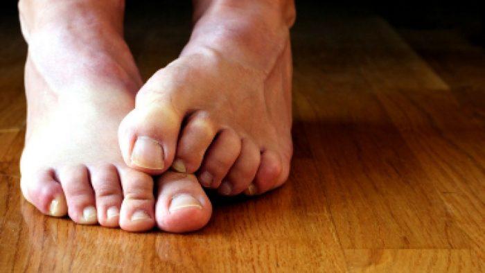 опрелости между пальцами на ногах