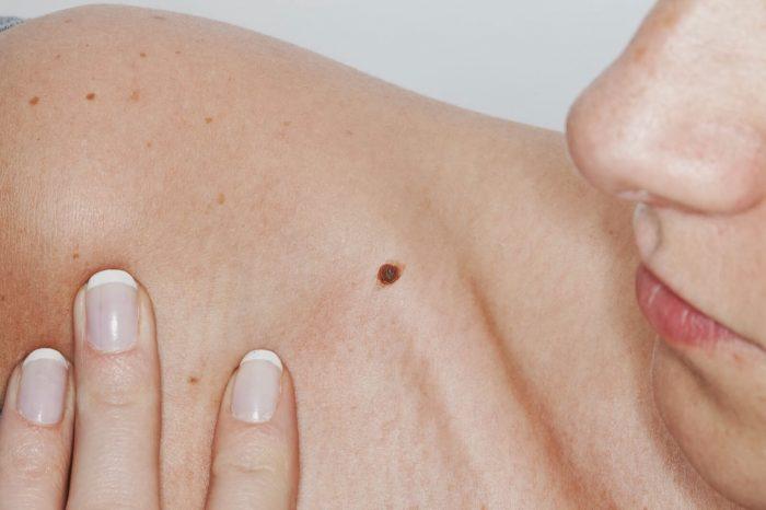 приобретенное или врожденное образование на коже