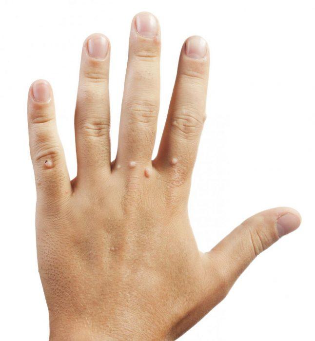 лечение бородавок на пальцах рук