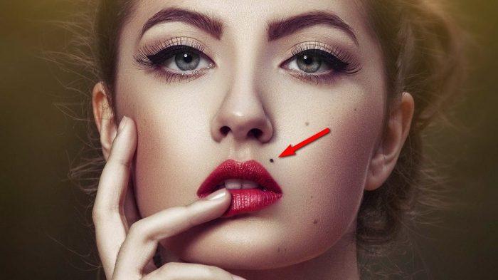 Родимое пятно на лице: причины появления и удаление пятен
