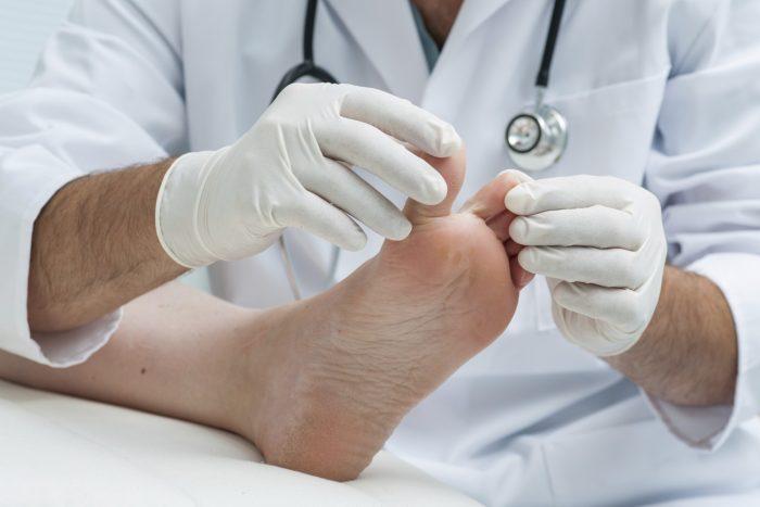 первые признаки грибка на ногах