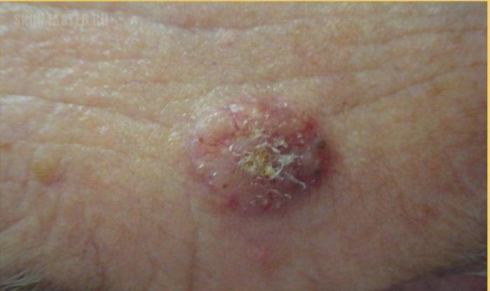 первые симптомы рака кожи