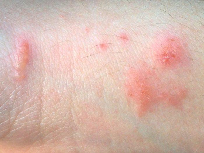 мазь обычно используют при дерматите